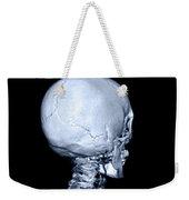 Human Skull Weekender Tote Bag