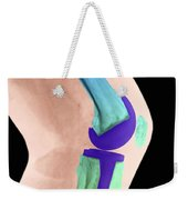 Knee Replacement X-ray Weekender Tote Bag