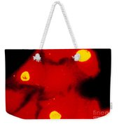 Lm Of Chlamydia Trachomatis Infection Weekender Tote Bag
