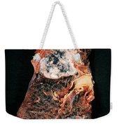 Lung Cancer Weekender Tote Bag