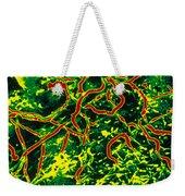 Lyme Disease, Sem Weekender Tote Bag by Science Source