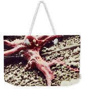 Malignant Cancer Cell Weekender Tote Bag