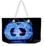 Mammogram Weekender Tote Bag