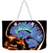 Mri Of Multiple Sclerosis Weekender Tote Bag