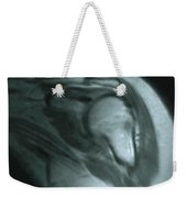 Mri Of Shoulder With Impingement Weekender Tote Bag by Science Source