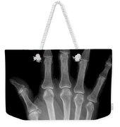 Osteoporosis And Degenerative Arthritis Weekender Tote Bag