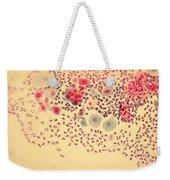 Pap Smear Weekender Tote Bag by AFIP / Science Source