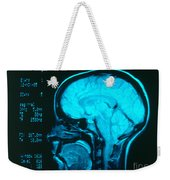Radiology Angiography Of Brain Weekender Tote Bag