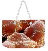 Sem Of Liver Weekender Tote Bag by Science Source