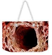 Sem Of Lung Weekender Tote Bag by Science Source
