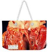 Subacute Bacterial Endocarditis Weekender Tote Bag