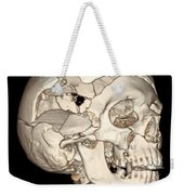 Three-dimensional Ct Reconstruction Weekender Tote Bag