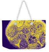 Toxoplasma Cyst Tem Weekender Tote Bag