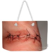 Wound Healing Day 1 Weekender Tote Bag