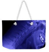 X-ray Of A Cervical Spine Weekender Tote Bag