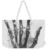 X-ray Of A Hand With Buckshot Weekender Tote Bag