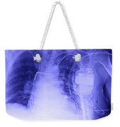 X-ray Of A Pacemaker Weekender Tote Bag