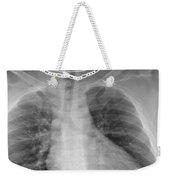 X-ray Of Enlarged Heart Weekender Tote Bag