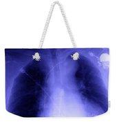 X-ray Of Implanted Defibulator Weekender Tote Bag