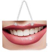 Esthetics Of Smile  Dental Veneers Vs Orthodontic Treatment Weekender Tote Bag