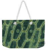 Iodine Stained Onion Cells Weekender Tote Bag