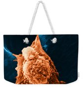 Metastasis Weekender Tote Bag by Science Source