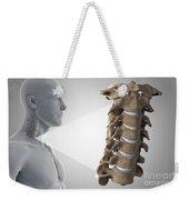 Cervical Vertebrae Weekender Tote Bag