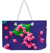 Cancer Cell Death, Sem 2 Of 6 Weekender Tote Bag