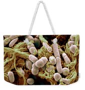 Chicken Skin Contaminated With Bacteria Weekender Tote Bag