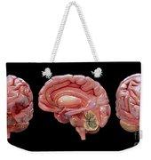 3d Rendering Of Human Brain Weekender Tote Bag