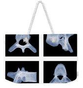 Human Vertebra T5, X-ray Weekender Tote Bag