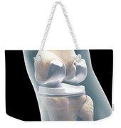 Knee Replacement Weekender Tote Bag