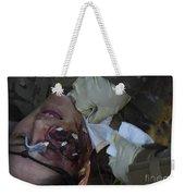 An Injured Patient Receives Medical Weekender Tote Bag
