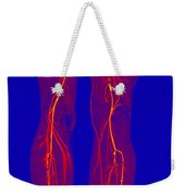 Atherosclerosis, Ct Angiogram Weekender Tote Bag