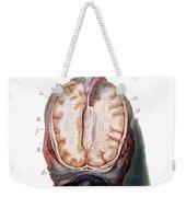 Brain, Anatomical Illustration, 1802 Weekender Tote Bag