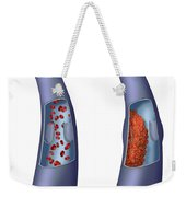 Deep Vein Thrombosis, Illustration Weekender Tote Bag