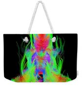Fiber Tracts Of The Brain, Dti Weekender Tote Bag