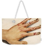 Hand With Roentgen Ray X-ray Weekender Tote Bag