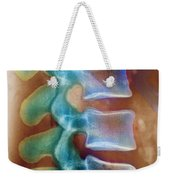 Healthy Lower Spine X-ray Weekender Tote Bag by SPL and Photo Researchers