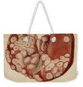 Liver, Sarcoma, Illustration, 1896 Weekender Tote Bag