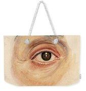 Melanoma Of Iris, Medical Illustration Weekender Tote Bag