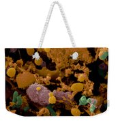 Microbial Discharge From Toothbrush Sem Weekender Tote Bag