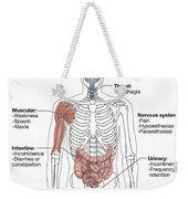 Multiple Sclerosis Symptoms Weekender Tote Bag