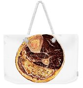 Muscle Degeneration, Fibrosis And Fat Weekender Tote Bag