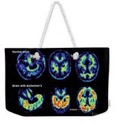 Normal And Alzheimer Brains, Pet Scans Weekender Tote Bag