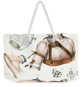 Operative Surgery, Illustration, 1846 Weekender Tote Bag