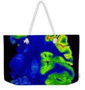 Pet Scan, Healthy Brain Weekender Tote Bag