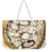 Placenta With Tumors, Illustration, 1836 Weekender Tote Bag
