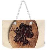 Renal Blood Clot, Kidney, Illustration Weekender Tote Bag