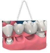 Restorations For Missing Teeth Implants, Dentures And Bridges Weekender Tote Bag
